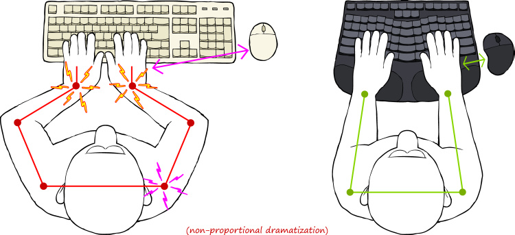 Wonderful Ergonomic Keyboard Position Truly Ergonomic Mechanical Keyboard Truly Ergonomic Mechanical